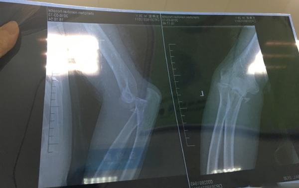 玩家摔到多重骨折,小米平衡车摊上事了-唯轮网